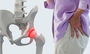 hogyan lehet enyhíteni a fájdalmat a lábak ízületeiben